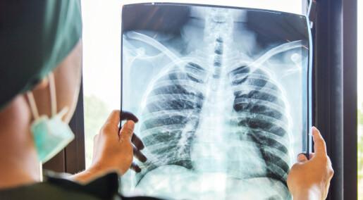 Større sjanse for å leve lenger med lungekreft i Norge enn i våre naboland