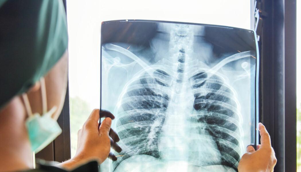 Blant norske kvinner som får lungekreft, overlever en av fire i fem år. I Finland gjelder det bare en av fem. For menn er overlevelsen lavere.