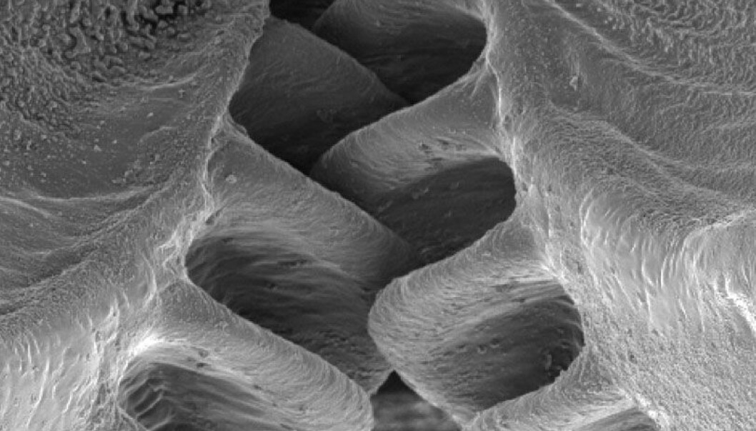Skjoldsikaden Issus coleoptratus har tannhjul på bakbeina. Malcolm Burrows