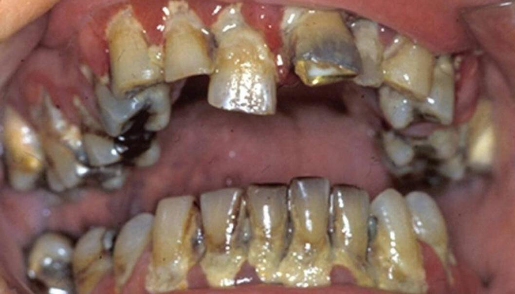 - Nå råtner tennene hjemme