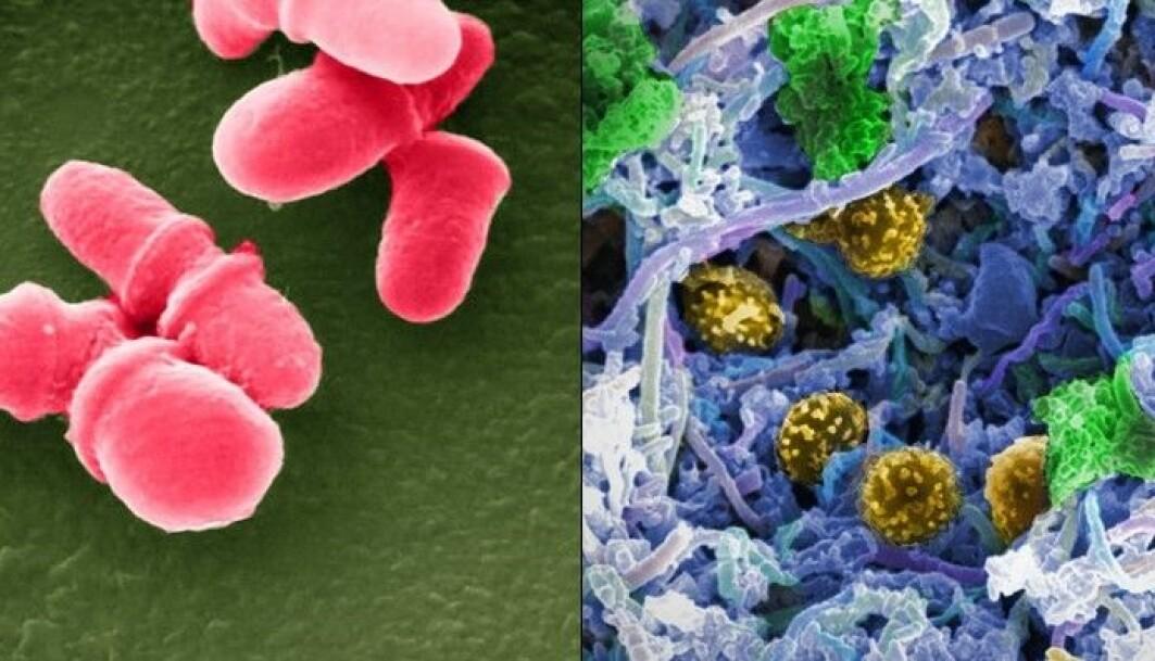 De siste tiårene har forskere kartlagt alle bakteriene som finnes i kroppen vår. Nå prøver flere å finne ut hvilken rolle de spiller når vi får kreft.