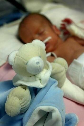 For tidlig fødte er svært sårbare og har større risiko for å utvikle en hjerneskade. Det kan blant annet gå ut over synet. (Foto: Colourbox) (Foto: Colourbox)