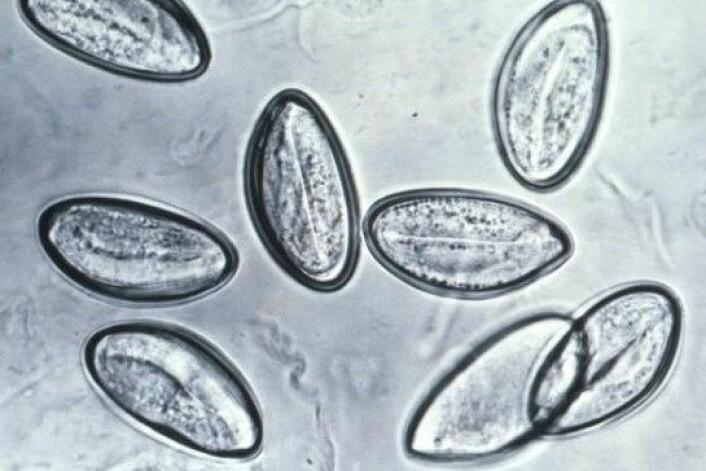 Egga til barnemarken Enterobius vermicularis kan smitte til andre ved dårleg handhygiene. Egga er om lag 0,0006 centimeter lange, og er berre synlege under mikroskop. (Foto: Wikimedia Commons)