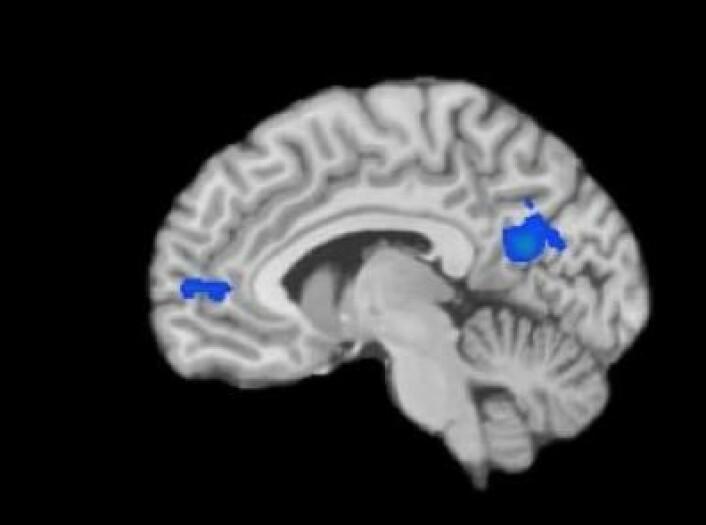 Den blå fargen markerer områdene i de mediterendes hjerner som hadde en redusert aktivitet. (Foto: Courtesy of Yale)