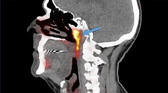 Nytt organ kan ha blitt oppdaget ved en tilfeldighet