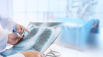Forskere vil undersøke røykere for lungekreft - det kan redde 150 liv årlig