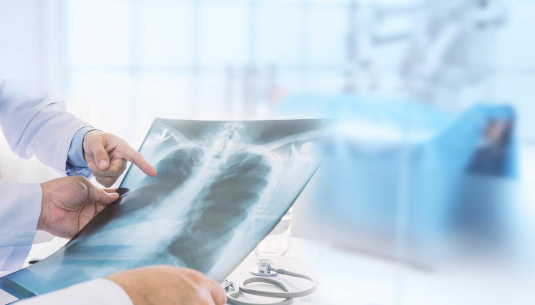 Kan redde flere: Nå starter pilotstudien opp som skal legge grunnlaget for lungekreft-screening i Norge.