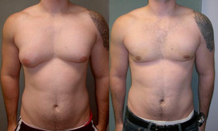 En ny dansk undersøkelse tyder på at opp mot 60 prosent av alle gutter utvikler bryster i puberteten. For de aller fleste forsvinner brystene igjen. (Foto: David Andrew Copeland/Dr. Mordcai Blau)
