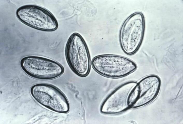 Egg av barnemark (Enterobius vermicularis) i mikroskopet. (Foto: CDC/Wikimedia Commons)