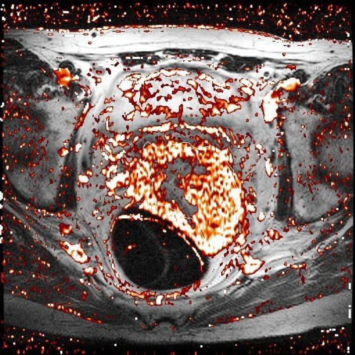 Kontrasmiddelopptak for en pasient. Lyse områder har høy konsentrasjon av kontrastmiddel, mens mørke områder har lave konsentrasjoner. Selve svulsten er markert med hvitt omriss. (Foto: Erlend Andersen)