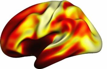 Hjernekartet til venstre viser fordeling av myelin i hjernebarken. Områder som er involvert i syn og hørsel, er relativt sett sterkt myeliniserte, representert ved lyse farger. Områder som antas å være viktige for mer sammensatte og avanserte oppgaver, har en lavere grad av myelin (mørkere farger). Kartet er basert på hjerneavbildning av 85 personer i alderen 27–52 år. (Foto: (Illustrasjon: Håkon Grydeland, UiO))