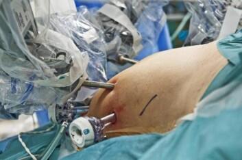 Solid oppfølging før og etter operasjonen er avgjørende for at pasienten skal lykkes i varig vektreduksjon. (Foto: Privat)