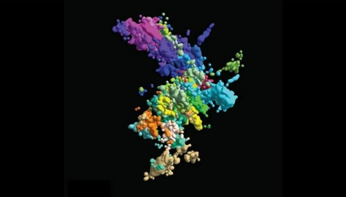 Dette er resultatet av forskere fra Harvard sitt forsøk på å fotografere et kromosom med ny 3D-teknologi. Ikke særlig mye X-form å spore; men teknologien gir et mye riktigere bilde på hvordan et kromosom faktisk ser ut, mener forskerne.