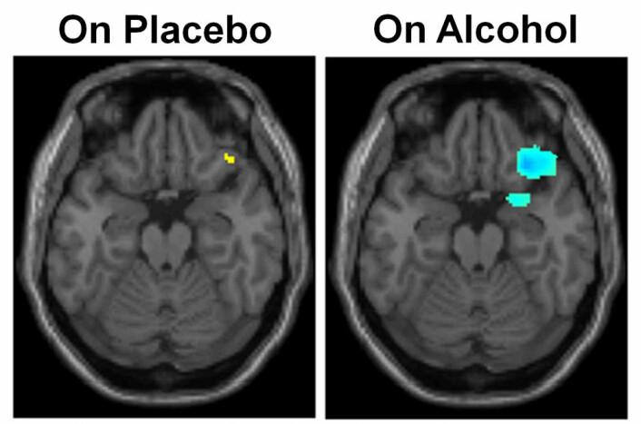 Områder med økt aktivitet er farget gult og deler med redusert aktivitet er blå. Bildene fortalte forskerne at alkohol hemmet kommunikasjonen mellom noen av hjernedelene. (Foto: (Illustrasjon: UIC))