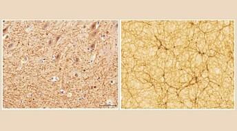 Hjernen vår ligner på universet. Er det tilfeldig?