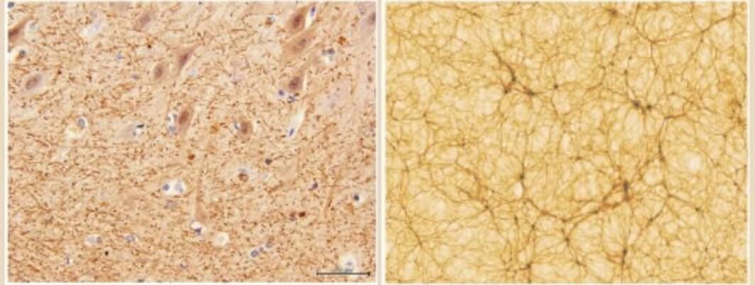 Til venstre et utsnitt av lillehjernen tatt med elektronmikroskop. Til høyre et utsnitt av universet over en strekning på 300 millioner lysår. Legg merke til mønstrene av tråder og knutepunkter.