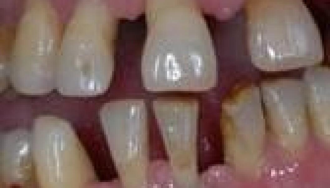 Tror på ny behandling av tannkjøttsykdom