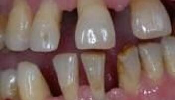 Mer enn halvparten av alle nordmenn vil bli rammet av periodontitt. Hans R. Preus