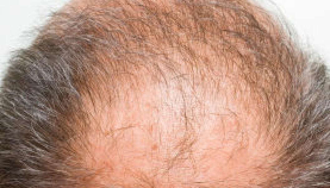 Enzymer og testosteron fører til en langsom død for disse hårene. (Illustrasjon: iStockphoto)