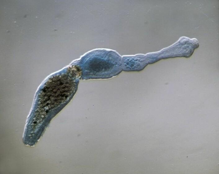 (Foto: Scanpix/Science Photo Library)