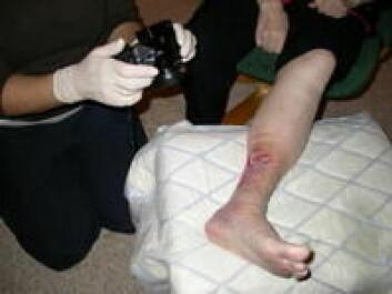 """""""Pleieren tar bilde av leggsår som sendes til en virtuell sårpoliklinikk for vurdering."""""""