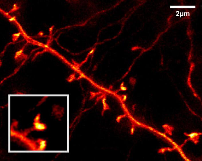 Del av dendritt fra nervecelle i levende musehjerne. Utsnittet nederst til venstre viser forstørrelse av en forgreningen til dendritten, hentet fra midten av det større bildet. Den viser en tynn hals og en fortykkelse i enden. (Foto: MPI for Biophysical Chemistry, Göttingen)