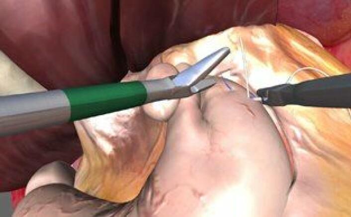 Sying av sting i simulator må være riktig plassert for å gi poeng. (Foto: Oslo Universitetssykehus)