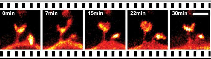 Bevegelsene i en del av dendritt fra nervecelle i levende musehjerne i løpet av en halv time. (Foto: MPI for Biophysical Chemistry, Göttingen)