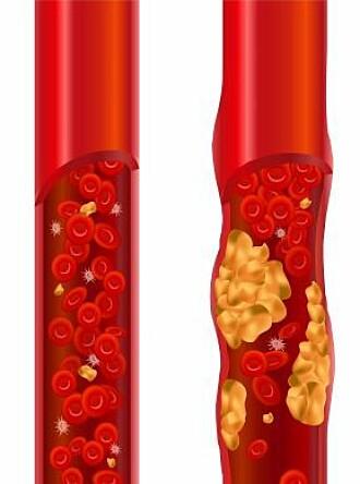 Kolesterol på innsiden av blodårene hindrer trafikken.