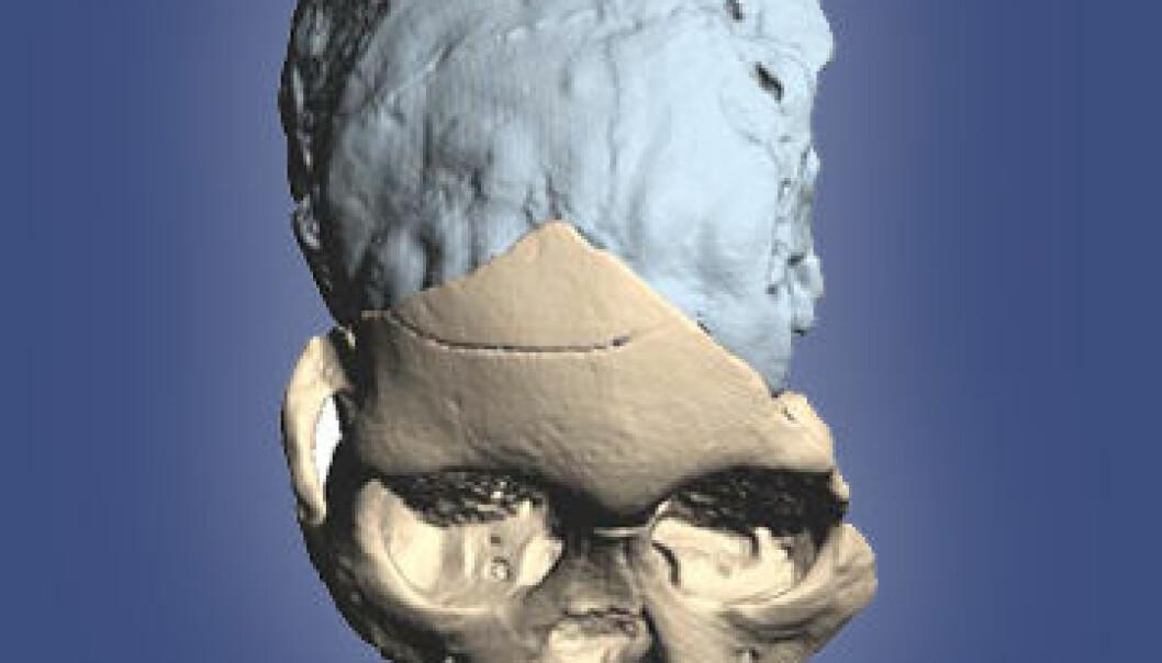 Taung-barnet (Australopithecus africanus), funnet i Sør-Afrika i 1924. Her er skallen rekonstruert som 3D-modell etter CT-scanning. (Bilde: M. Ponce de León and Ch. Zollikofer, University of Zurich)