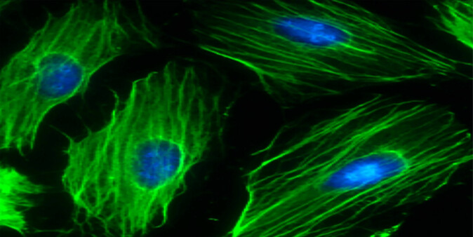 The picture shows heart cells formed by stem cells. The cell nucleus appears blue and stem cells are green. NTNU researchers have identified a protein that heart-diseased rats are deficit in, but which increases when the rats have been on an exercise regimen.