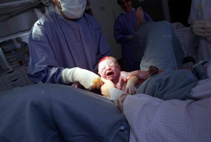 Baghestan tror økningen i fødselsrifter mellom 1967 og 2004 skyldtes en kombinasjon av at vi er blitt bedre til å diagnostisere og registrere disse skadene og forandringer i fødepopulasjonen og i praksis på fødeinstitusjonene. (Illustrasjonsfoto: www.colourbox.no)