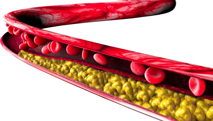 The development of atherosclerosis is dependent on the balance of various types of lipoproteins that carry fat in and out of the body.