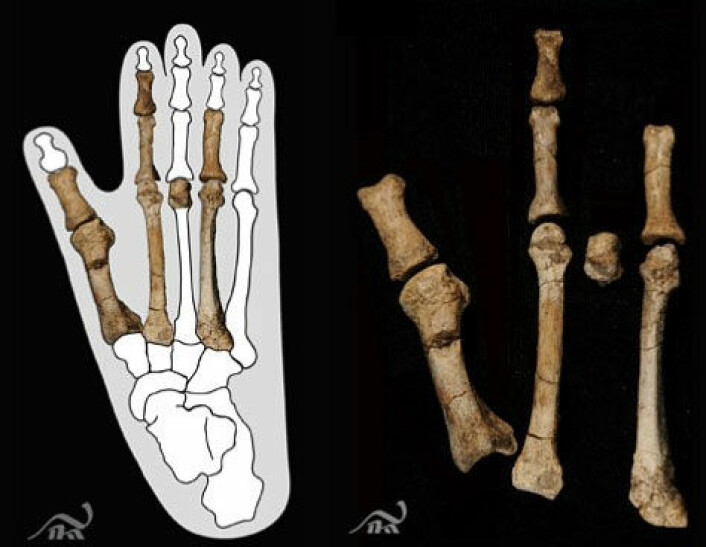 Dei nye fossile beinrestane tyder på ein mennesketype med fot som ein ape. Biletet til venstre viser beinrestane montert inn i omrisset av ein moderne gorillafot. (Foto: Yohannes Haile-Selassie, The Cleveland Museum of Natural History/ Montasje, NRK)