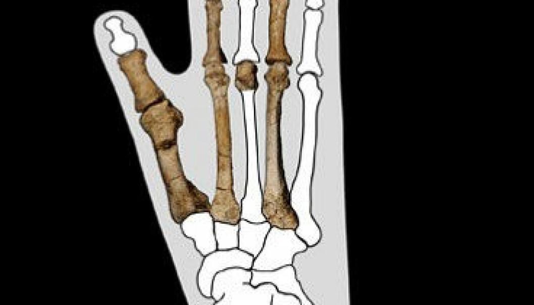 Dei nye fossile beinrestane tyder på ein mennesketype med fot som ein ape. Biletet til venstre viser beinrestane montert inn i omrisset av ein moderne gorillafot. Yohannes Haile-Selassie, The Cleveland Museum of Natural History/ Montasje, NRK