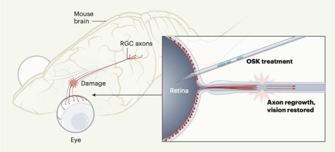 Illustrasjonen viser hvordan behandlingen og gjendannelse av synet hos mus fungerer. Retinale ganglieceller (RGC-er) overfører visuell informasjon fra øyet til hjernen langs nervefibre som kalles aksoner. Skader på nervefibrene forhindrer kommunikasjonen, noe som fører til blindhet. Forskerne viser i studien at behandling av nerveceller med de såkalte transkripsjonsfaktorene som kalles OSK gjendanner cellene til en ungdommelig tilstand. Behandlingen resulterer i at det kan vokse fram nye nervefibre.