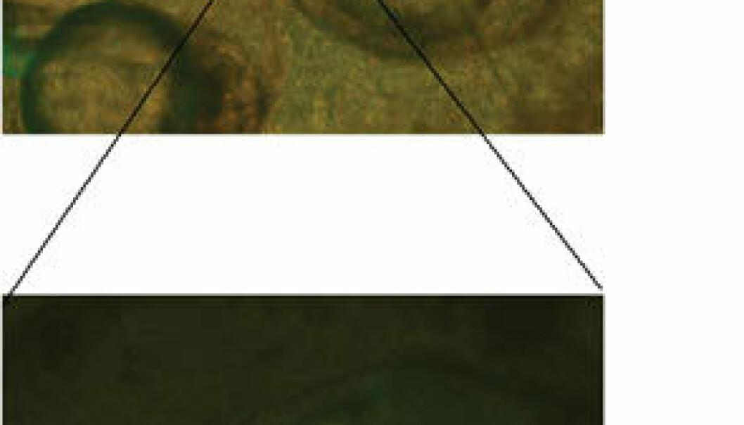 """""""Bilde av sebrafiskembryoer hvor enkelte celler uttrykker sau-PrP koblet til et protein som fluoriserer grønt. De cellene som er positive for sau-PrP vil da lyse sterkt grønt ved analyse i floresensmikrosop."""""""