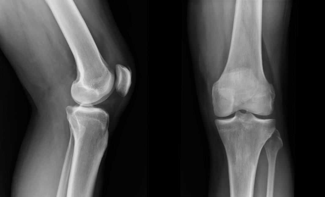 – Tanken er å finne opp et apparat som gjør at legen finner ut om brusken er skadet og hvor hardt den er skadet, sier forsker Hafeez Ur Rehman.