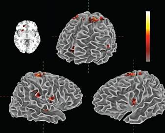 """""""Illustrasjonen viser de ulike områdene i hjernen som aktiveres ved musikklytting."""