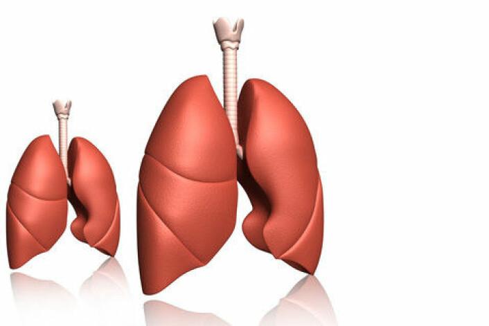 Kombinasjonen av lungevevets store overflateareal og den kraftige blodtilførselen øker risikoen for å stresse cellene når man røyker. Det kan føre til kols og skader på cellenes innebygde klippekort, telomererene. Telomerer forhindrer nedbrytning av kromosomene. Lengden har betydning for organismens levetid. (Foto: Colourbox)