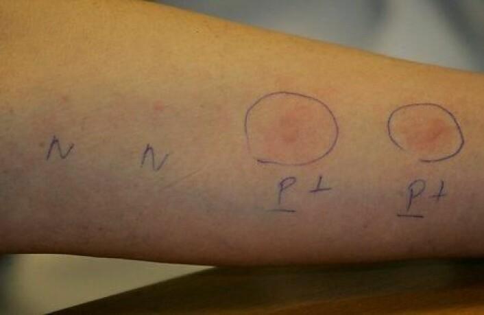 I en ny undersøkelse har forskerne ved hjelp av en såkalt prikktest undersøkt overfølsomheten blant en stor gruppe landbrukselever. Med en prikktest kan man finne ut hvilke stoffer man er overfølsom overfor ved å prikke med forskjellige stoffer på huden. Hvis testen viser tegn på overfølsomhet, kan det bety at man også er allergisk overfor stoffet. Men man er ikke nødvendigvis allergisk overfor et stoff (altså har allergiske symptomer), selv om man er overfølsom overfor det, understreker forskerne bak den nye studien. (Foto: Colourbox)