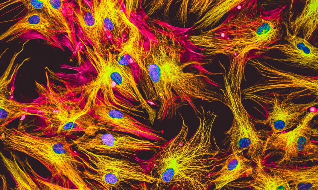 Menneskelige hudceller i kultur under mikroskopet.
