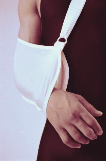 Hos pasienter med beinmargskreft blir balansen mellom nedbryting og nydannelse av bein forstyrret. (Foto: Shutterstock)