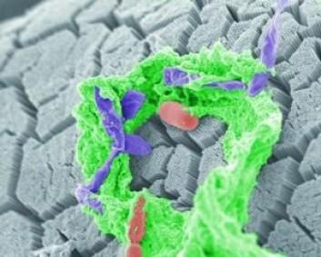 Farging av tarmbakterier fra en mus. (Foto: Mattias Bergentall og Fredrik Bäckhed, Sahlgrenska akademi)