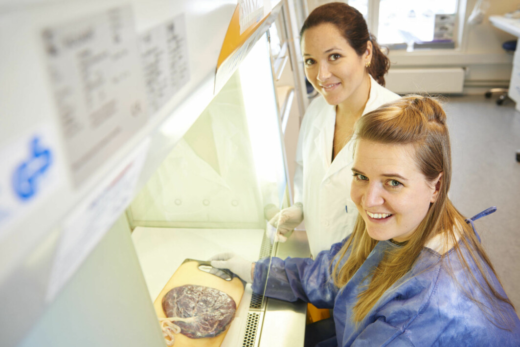 The results of many years of research have been a long time coming. Gabriela Silva (in a white coat) used tissue samples from a biobank, including placenta samples from 90 women with pre-eclampsia obtained immediately after birth. The samples were examined using advanced microscopes.