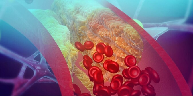 The heart pumps about five litres of blood through the body every minute. The blood vessels that carry blood from the heart become clogged with something called plaque. Cholesterol crystals are found in plaque.