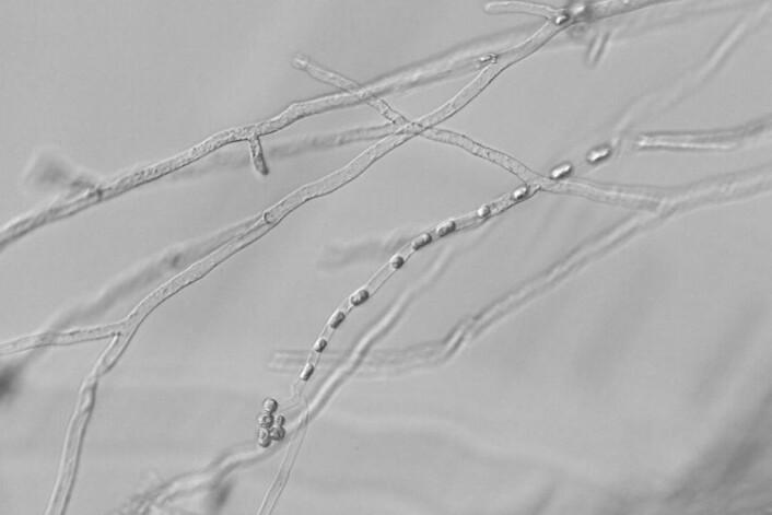Hyfer med sporer (= sporangium) av eggsoresoppen Aphanomyces astaci. (Foto: David Strand)