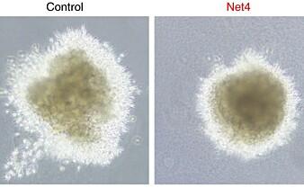 Danske forskere tar et steg nærmere det å kunne forutsi spredningen av kreft før den oppstår