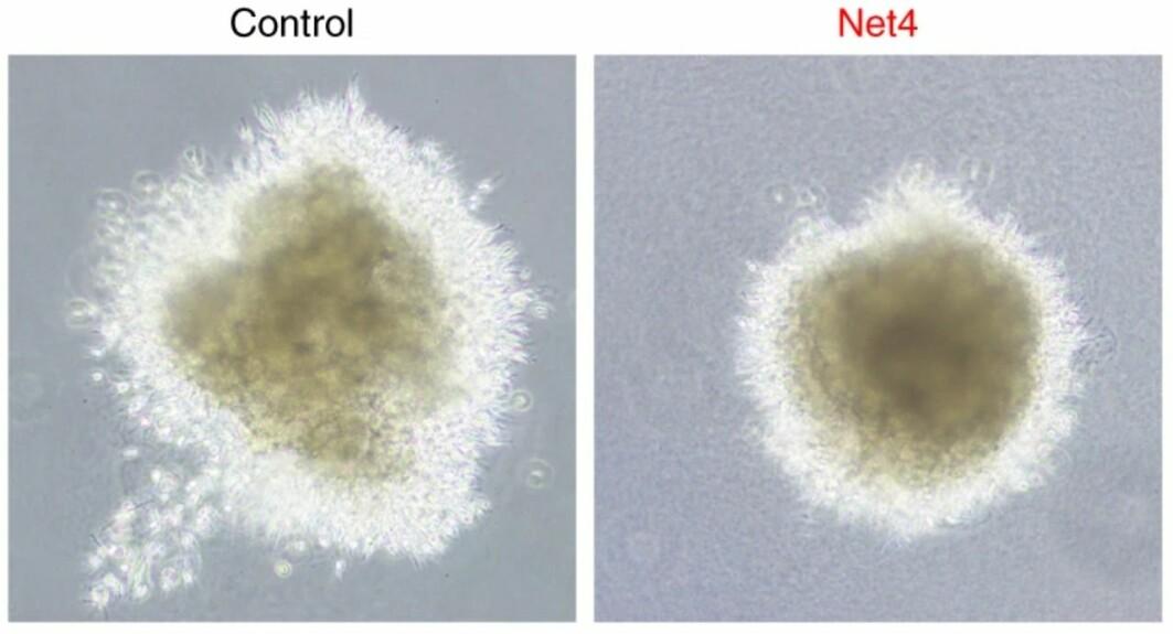 Bildet er fra et in vitro-eksperiment (i laboratoriet). Det viser en sfæroid – en slags ball – av kreftceller fra melanom/føflekkreft, og hvordan netrin 4-protein ser ut til å hemme spredningen av kreftceller i laboratoriet