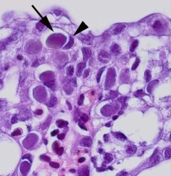 Mikroskopbilde av epiteliocystene (pil) i affiserte gjeller. Vertens egen cellekjerne er skjøvet til siden (pilhode). (Foto: Agnar Kvellestad)